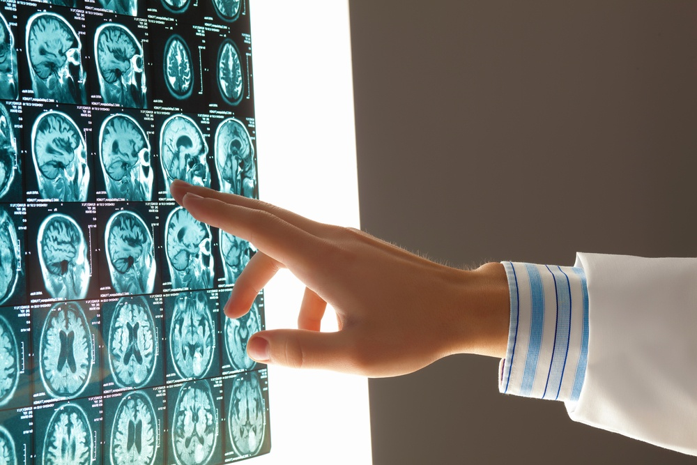 Mobile MRI Rentals - Review of Mobile MRI Scan Images
